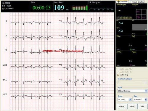DMS CardioScan Resting 12-Lead PC ECG