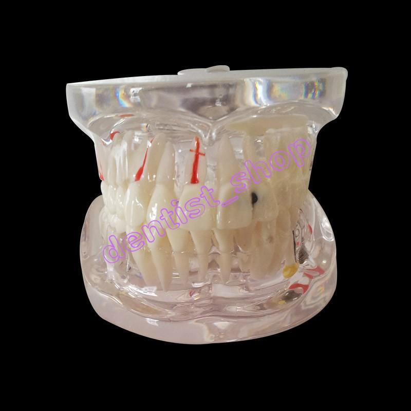 модель прозрачной реставрации зубов с имплантата демонстрации имплантат молярной съемный