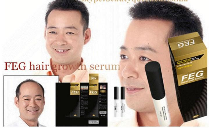 Hair Loss Solution Oil from FEG Brand 5ml Sample