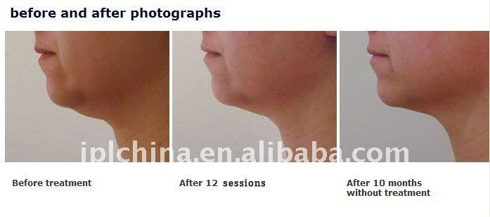 Face Lifting Skin Tightening RF Beauty Machine