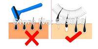 Эпиляторы новинка для удаления волос