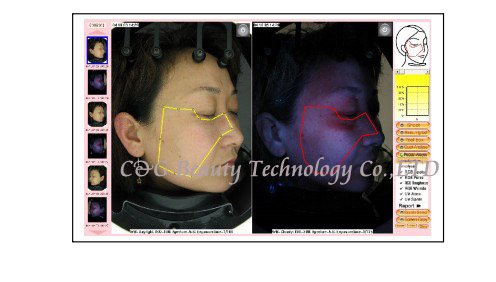 face Skin analyzer System magic mirror