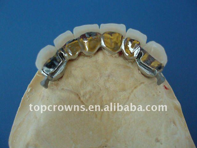 Attachement dentaire de précision avec des équipements de dentier