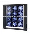 ultra delgada de cine médico visor de equipos de radiología