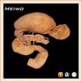 el páncreas y el bazo plastinados duodeno modelo