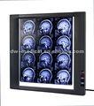 negatoscópio led máquina de raio x