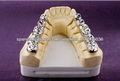 coronas dentales de oro completo