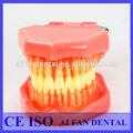 Aifan de estudio dental modelo de los dientes con los dientes extraíbles af-7005