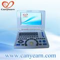 b scanner à ultrasons machines de diagnostic en ligne magasin de porcelaine chinoise