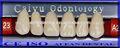 Dental aifan venta caliente af-st11 resina sintética dientes de acrílico