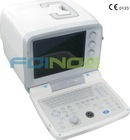 Portable Ultrasound FN200 scanner