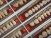 Denti'lux acrylic resin teeth