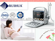 Excellent and Reliable EXRH-600 Portable Color Doppler ultrasound echocardiography equipment with cardiac probe (3D optional)