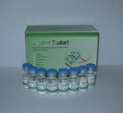 Recombinant Human Solute Carrier Family 9 (Sodium/Hydrogen Exchanger), Member 3 Regulator 1, His-tagged