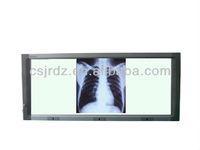 good price slim radiography led film viewer