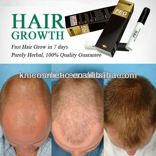 ... Hair care > Hair growth > Fast hair growth FEG hair solution-better