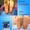 Tibetan herbal ointment for healing diabetic foot ulcer