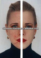 Best Anti Marks Cream with Herbal Ingredients
