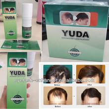 oem y etiqueta privada del crecimiento del pelo producto de la fábrica precio yuda ervamatin loción capilar