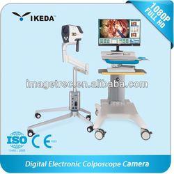 medical video colposcope camera/colposcope software/plastic vagina images picture