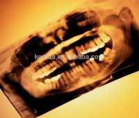 medical thermal x ray film,automatic x-ray film processor ,dental x-ray film