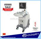 DW370 3d scanner machine & medical imaging system