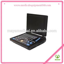 MY-A008 Laptop Ultrasound Scanner(ultrasonic,black white,Imaging System)