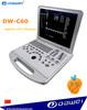 3d 4d portable ultrasound & laptop ultrasound portable