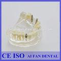 Dental aifan venda quente af-2005 mandíbula superior dental implant fabricantes modelo de estudo com parafuso do implante
