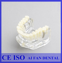 [ AiFan Dental ]High Quality AF-2006 Implant Bridge and Caries Typodont Removable Teeth Model