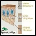 Cruz- ligados hialuronato de sódio enchimento/gel/injeção
