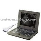 CMS600P Laptop Medical Ultrasound -- CE approved