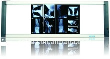 x ray film negatoscope/x ray film illuminator/x-ray film viewer