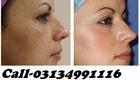 Best Skin Whitening Tablet   Better than Glutathione Skin Whitening Tablet in Pakistan-Call-03124484957