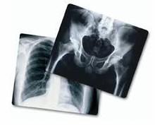 used x ray film