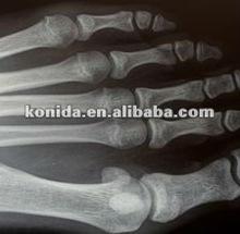 Seca imagem filmes, filmes médicos de raios-x, kodak cr acessórios