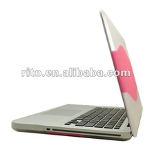 TPU Shell Case for Macbook Air 11.6""
