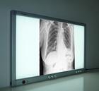 x-ray film LED Film Viewer/aluminum