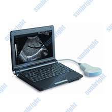Portable ultrasound machine equipment 2 dimension