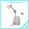 MY-D024 20KW High Frequency Mobile X Ray Machine
