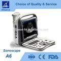 Sonoscape Ultrasonido A6 portátil en blanco y negro CE ISO FDA