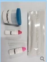 Sperm Density Test Cassette/fast diagnostic screening test for sperm concentration