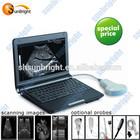 echo ultrasonic machine mini ultrasound device/equipment