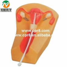 Female intrauterine contraception practice model BIX-F5N