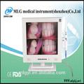 M-958a 15 pulgadas nuevo tipo de pantalla lcd wifi y la función de cámara inalámbrica quirúrgica de vidrio de aumento