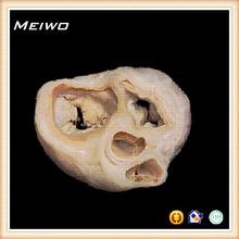 heart valve and annular fibers model of human body