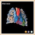 Corazón - de un solo pulmón vascular bastidor de especímenes para de enseñanza médica