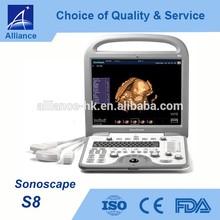 Sonoscape S8 Portable Color Doppler Ultrasound