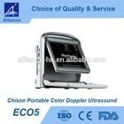 Chison ECO5 Portable Color Doppler Ultrasound