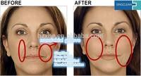 Hot sale Hyaluronic Acid Dermal filler for nasolabial folds wrinkle removal